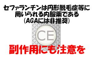 セファランチンは円形脱毛症には用いられるがAGAには非推奨