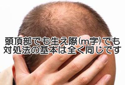 m字はげを回復させる3つのポイント|頭皮をほぐしDHTを抑制する