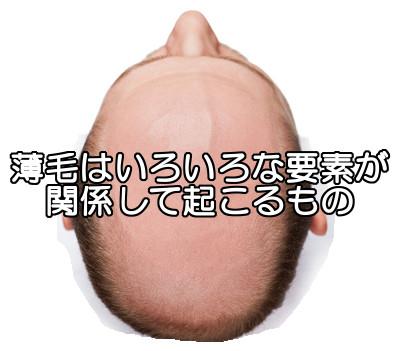 頭頂部も遺伝の影響を受ける可能性大ですが原因はそれだけではない