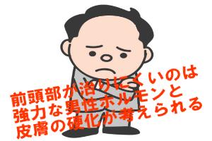 前頭部の薄毛が治りにくい理由は男性ホルモンと皮膚の硬さにある