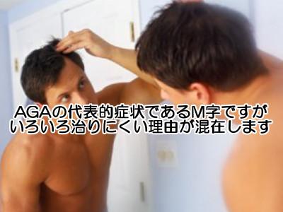 m字部分は様々な薄毛になりやすい要因が重なっているためとても治しにくいのが特徴