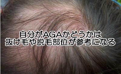 AGAは前頭部か頭頂部から症状が出るので進行具合は遅いですがもっとも多い例なので割とわかりやすいかもしれない。