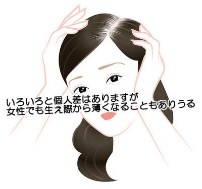 おでこの生え際の両側が…m字に剃り込みが入るのは女でもありえる?