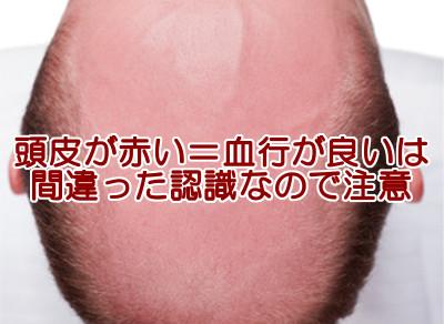 頭皮が赤いのは薄毛サインの1つ|血行も新陳代謝も悪化しています