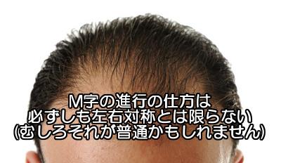 m字はげの進行が片側に集中|左右対称でないのは当たり前?