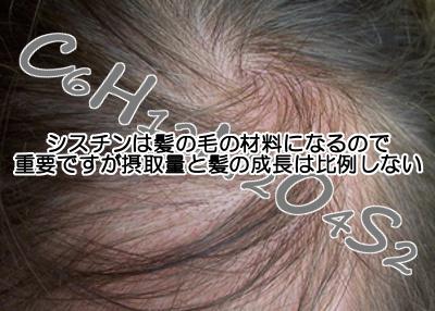シスチンは髪にとって大事な成分のひとつですがわざわざサプリで摂取すべきかどうかは疑問が残る