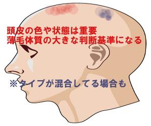 頭皮の状態で貧血・血行不良・炎症タイプを見分ける方法