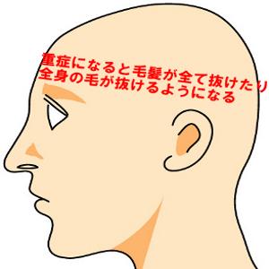 円形脱毛症の症状は軽いものから重いものまで5種類存在する