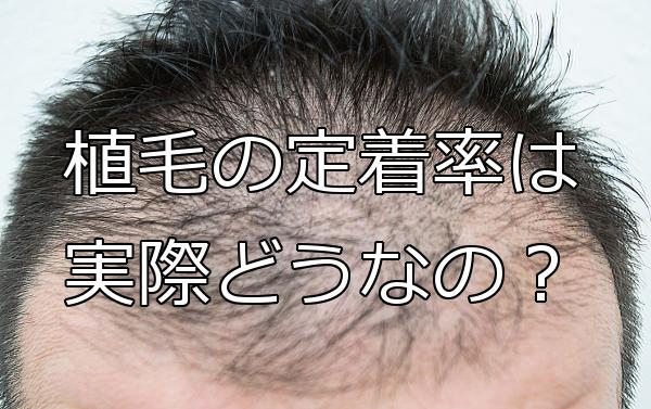 自毛植毛の定着率の実際は? 多くは90%以上とされてるが