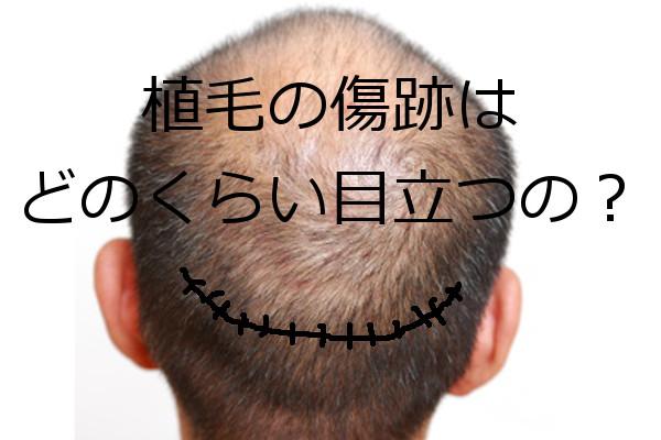 植毛のドナー採取で傷跡は残るがほとんど目立たないレベル