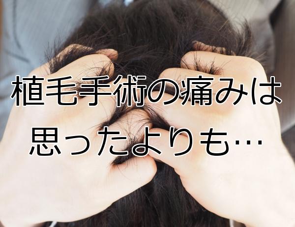 植毛手術は痛みの心配がほぼなし 術後は痛み止めで等で対処