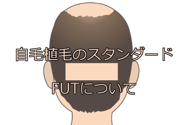 自毛植毛の基本であるFUTの特徴 欠点は解消されつつある