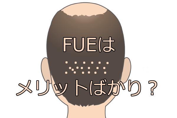 自毛植毛のFUEについて 傷跡が目立たず痛くない特徴が?