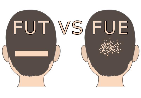 FUTとFUEを注意深く比較すると見えてきた大切なこと