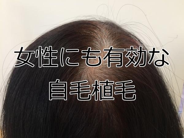 自毛植毛は女性にもすごく有効 特にFAGAに本領発揮