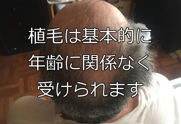 自毛植毛に年齢制限はない 未成年でも老齢でも健康なら可能