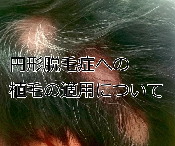 植毛は円形脱毛症にも有効なのか 検討はより慎重に