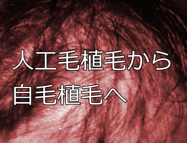 人工毛植毛した後でも自毛植毛で修復可能 留意点は3つ