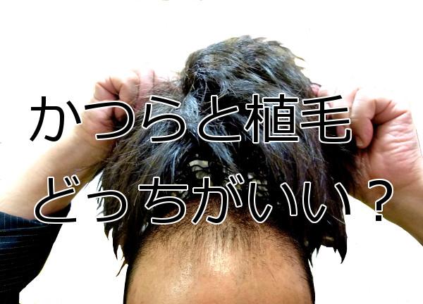 かつらなどの増毛と植毛はどちらがいいかを考える