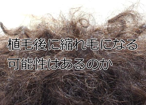植毛と縮れ毛の関係 大半は1年ほどで元に戻りますが…