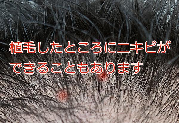 植毛部にニキビが出来た時の対応 大半は問題なく落ち着く