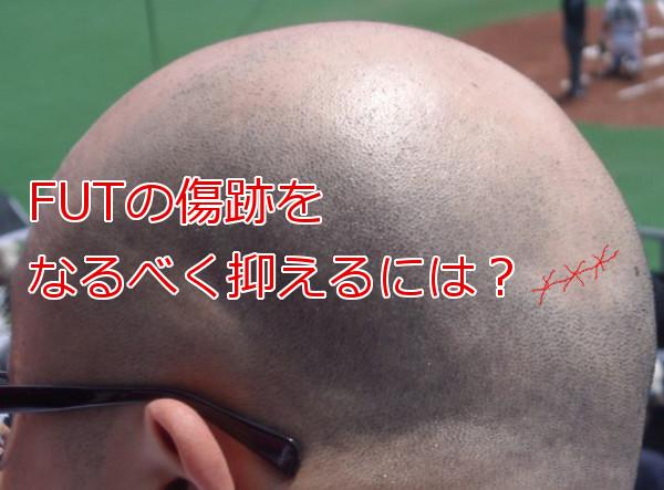 植毛のfutで傷跡が生じる原因となるべく目立たなくする工夫