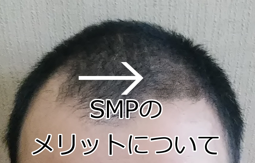 SMPのメリット